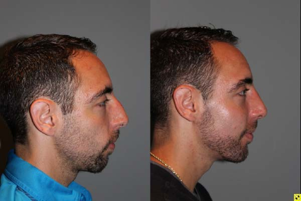 Male Rhinoplasty - Rhinoplasty - 26 year old male 1 month post op following a rhinoplasty with chin implant.