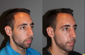Male Rhinoplasty - 26 year old male 1 month post op following a rhinoplasty with chin implant.