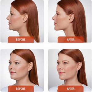 woman photos before and after Kybella Injections