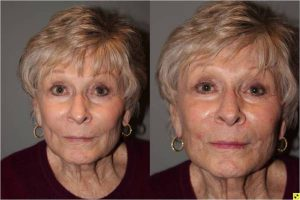 Voluma Injectable Treatment - 79 year old female after 3 syringes of voluma to nasolabial folds and cheek hollows using bruise free injectable technique.