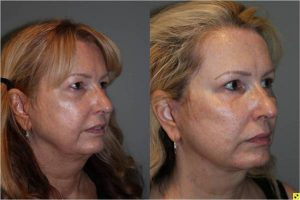 Upper Blepharoplasty & Mini Deep Plane Facelift -