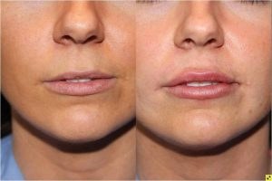 Lip Injections - 25 year old female after bruise free microcannula restylane silk lip injections.