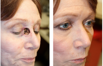 Before & After Inner canthus/nasal defect - 57 year old female with large inner canthus/nasal defect following Mohs surgery, requiring a glabellar flap reconstruction.