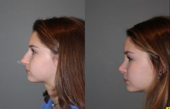 Rhinoplasty - 14 year old female 5 months post op from a rhinoplasty to tighten the tip, shorten the nose, elevate the tip, and remove the hump.