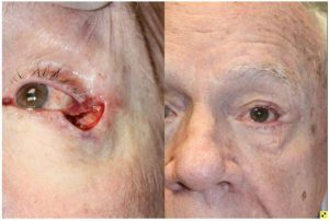 Before & After Lower eyelid Mohs defect - Lower eyelid Mohs defect - 79 year old male with outer, lower eyelid and lateral canthal tendon Mohs defect, 2 months following a lateral canthal tendon repair and myocutaneous tenzel flap reconstruction.