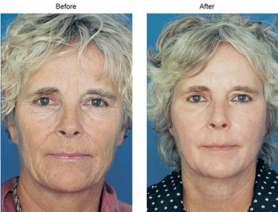Before and After photo of a womans face after using Obagi Blue Peel