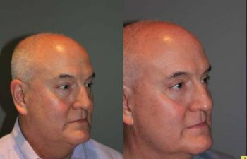 Blepharoplasty and cosmetic surgery silo before and after - 52 year old male 3 months post op from upper and lower blepharoplasty or eyelid lift.