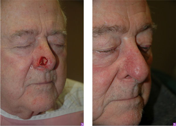Before & After Bilobed flap reconstruction - Post-Mohs nasal skin defect requiring bilobed flap reconstruction.