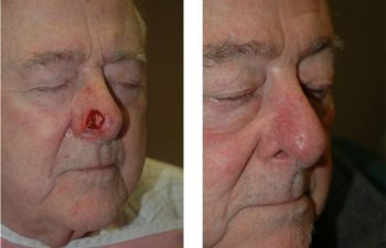 Bilobed flap reconstruction - Post-Mohs nasal skin defect requiring bilobed flap reconstruction