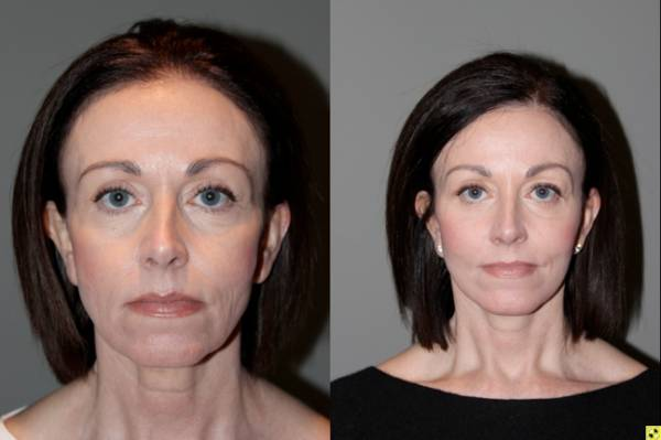 S-Lift Facelift and Lower Blepharoplasty - Correction of aging neck and jaw line. 49 year old female desiring correction of her aging neck and jaw line and the bags/puffiness under her eyes. She underwent S-Lift facelift and lower eyelid blepharoplasty with fat transposition 4 months previously.