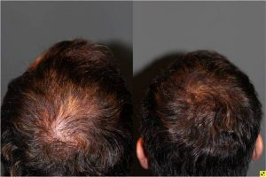 36 year old male 9 months postop from Neograft FUE crown hair transplant restoration with 1200 grafts -