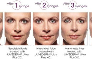 Juvederm® XC Optimal Correction - before and after 1 year.