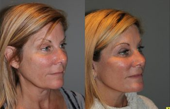 KalosLift - 51 year old female 9 months post op, following a KalosLift or an extended mini deep plane facelift