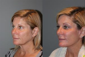 Extended Mini Deep Plane Facelift - 51 year old female 9 months post op, following a KalosLift or an extended mini deep plane facelift