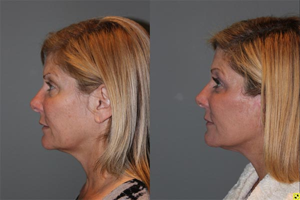 KalosLift Facelift - 51 year old female 9 months post op, following a KalosLift or an extended mini deep plane facelift