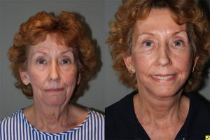 Mini Deep Plane Facelift - 61 year old female 1.5 months after Mini Deep Plane Facelift