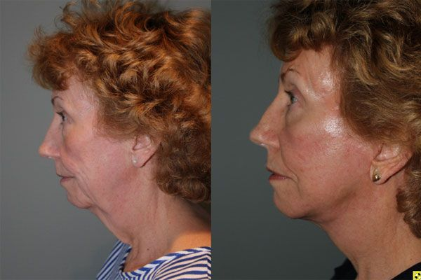 Mini Deep Plane Facelift - 61 year old female 1.5 months after Mini Deep Plane Facelift.