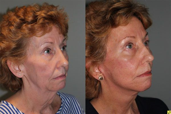 The KalosLift - 61 year old female 1.5 months after The KalosLift.