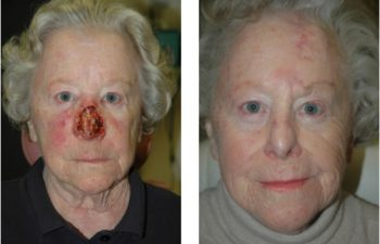 Before & After Subtotal nasal defect - Subtotal nasal defect requiring regional forehead flap reconstruction.