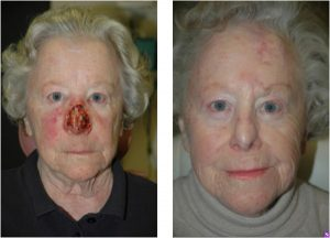 Subtotal nasal defect - Subtotal nasal defect requiring regional forehead flap reconstruction.