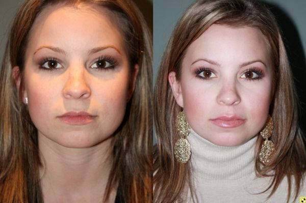 Before & After French lip augmentation - 26 year old female 2 weeks after undergoing French lip augmentation with juvederm creating natural looking fuller lips.