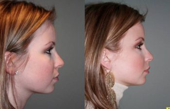 French lip augmentation - 26 year old female 2 weeks after undergoing French lip augmentation with juvederm creating natural looking fuller lips.