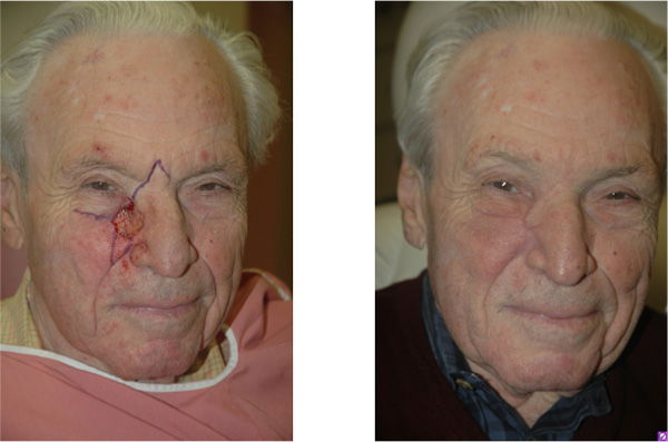 Before & After Combination local flap reconstruction - Problematic defect affecting two facial subunits requiring combination local flap reconstruction.