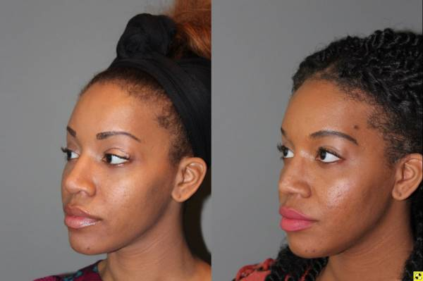 Rhinoplasty - 26 year old female 6 months following a revision ethnic rhinoplasty for a large bulbous tip following a primary rhinoplasty done by another surgeon