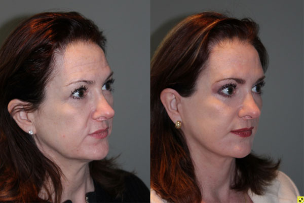 Mini Deep Plane Facelift & Upper and Lower Eyelid Blepharoplasty - 52 year old female 1 year post-op from upper and lower eyelid blepharoplasty and mini deep plane facelift​​.