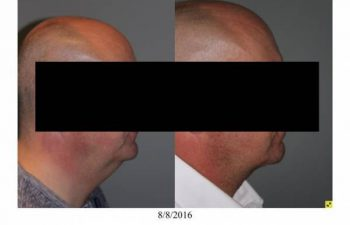Neck Lift performed in office - 55 year old male 5 months post op direct necklift performed in office awake using only local anesthesia