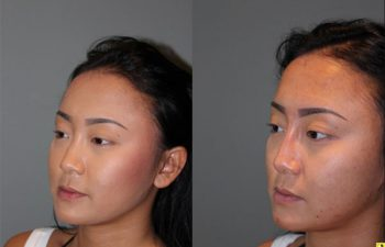 Liquid Rhinoplasty - 23 year old female with a flat nasal bridge immediately after liquid rhinoplasty to increase the projection of the bridge of her nose.