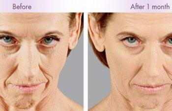 Juvederm Voluma® XC Treatment - Juvederm Voluma® XC was injected into the zygomatic arch, anteromedial cheek, and submalar region.