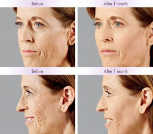 Juvederm Voluma® XC Treatment - Juvederm Voluma® XC was injected into the zygomatic arch, anteromedial cheek, and submalar region.