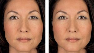 Juvederm® Eye Treatment - before and after 2 syringes of Juvederm® Ultra Plus.