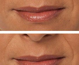 Juvederm® Lip Treatment - before and after 2 syringes of Juvederm® Ultra Plus.