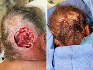 Large posterior Scalp Mohs Defect - Large posterior scalp Mohs defect closed using an opposing, rotation, advancement, multiflap closure technique.