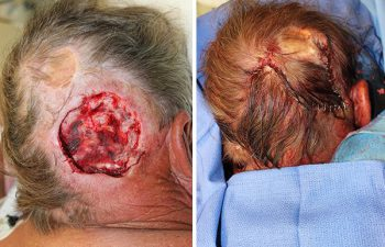 Large posterior Scalp Mohs Defect - Large posterior scalp Mohs defect closed using an opposing, rotation, advancement, multiflap closure technique.