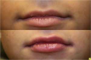 Juvederm Lip Injections - 19 year old female after bruise-free cannula injection of juvederm to upper and lower lips