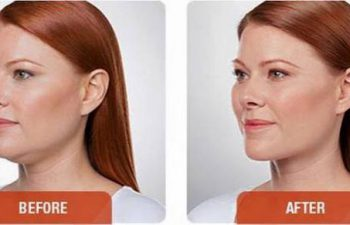 photos of a woman before and after a Kybella procedure