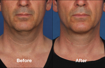photos of a man before and after a Kybella procedure