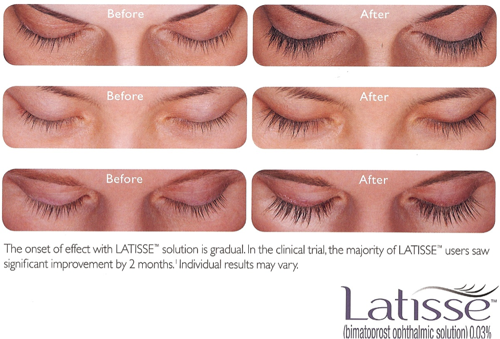 Before and after photos of a womans face. The onset of effect with LATISSE solution is gradual. In the clinical trial, the majority of LATISSE users saw significant improvement by 2 months. Individual results may vary.