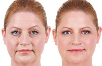 Juvederm® XC treatment - before and 2 weeks after treatment for marionette lines, parentheses lines, corner lines and vertical lip lines.