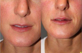 Juvederm Lip Augmentation - 32 yo female 2 weeks following juvederm lip augmentation.