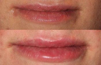 Juvederm Lip Augmentation - juvederm lip injection using the bruise free cannula injection technique.