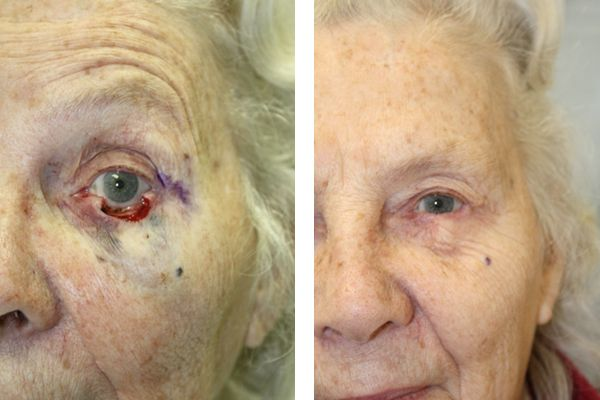 Before & After Lower eyelid defect - Full thickness subtotal lower eyelid defect after Mohs surgery, requiring a Tenzel rotation advancement flap reconstruction.
