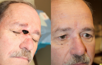 Nasal sidewall defect - 61 year old male with a large combination canthal, eyelid, nasal sidewall defect following Mohs surgery requiring a glabellar flap reconstruction.
