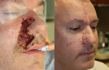 Nose, lip, and cheek skin cancer reconstruction - 48 year old male 3 months post op from a complex Mohs reconstruction of the lip, nose, and cheek.