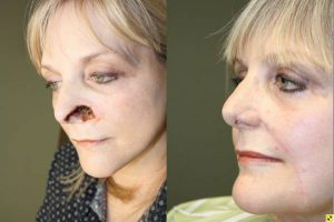 Before & After Large nasal ala/sidewall defect - 60 year old female with very large nasal ala/sidewall defect following Mohs surgery, requiring internal nasal lining flap, auricular cartilage graft, and a two stage cheek interpolation flap reconstruction.