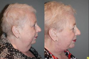 Before & After Facelift/Necklift with Chin Implant - 66 year old female 3 months following a facelift/necklift with chin implant.