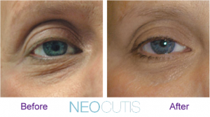 before and after photos of an eye after using neocutis